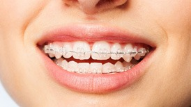 Thumbnail - Clarity Ceramic Braces