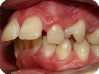 Upper Front Tooth Protrusion